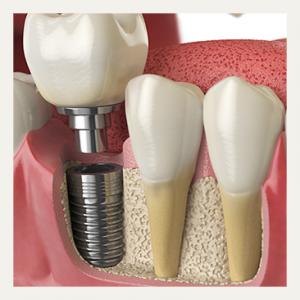 implante-01